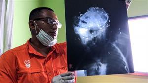 Über 130 Patronen fanden Tierärzte im Körper des ausgewachsenen Orang-Utans